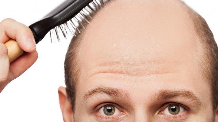 Bahan Tuk Cegah Rambut Rontok Menurut dr Dody Budiarso