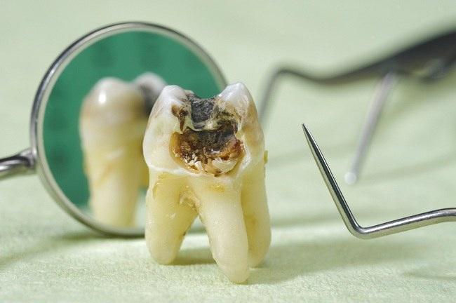 Cara Meredakan Sakit Gigi Dengan Bahan-Bahan Yang Ada Dirumah
